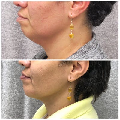 Chin Gallery - Patient 5070682 - Image 1