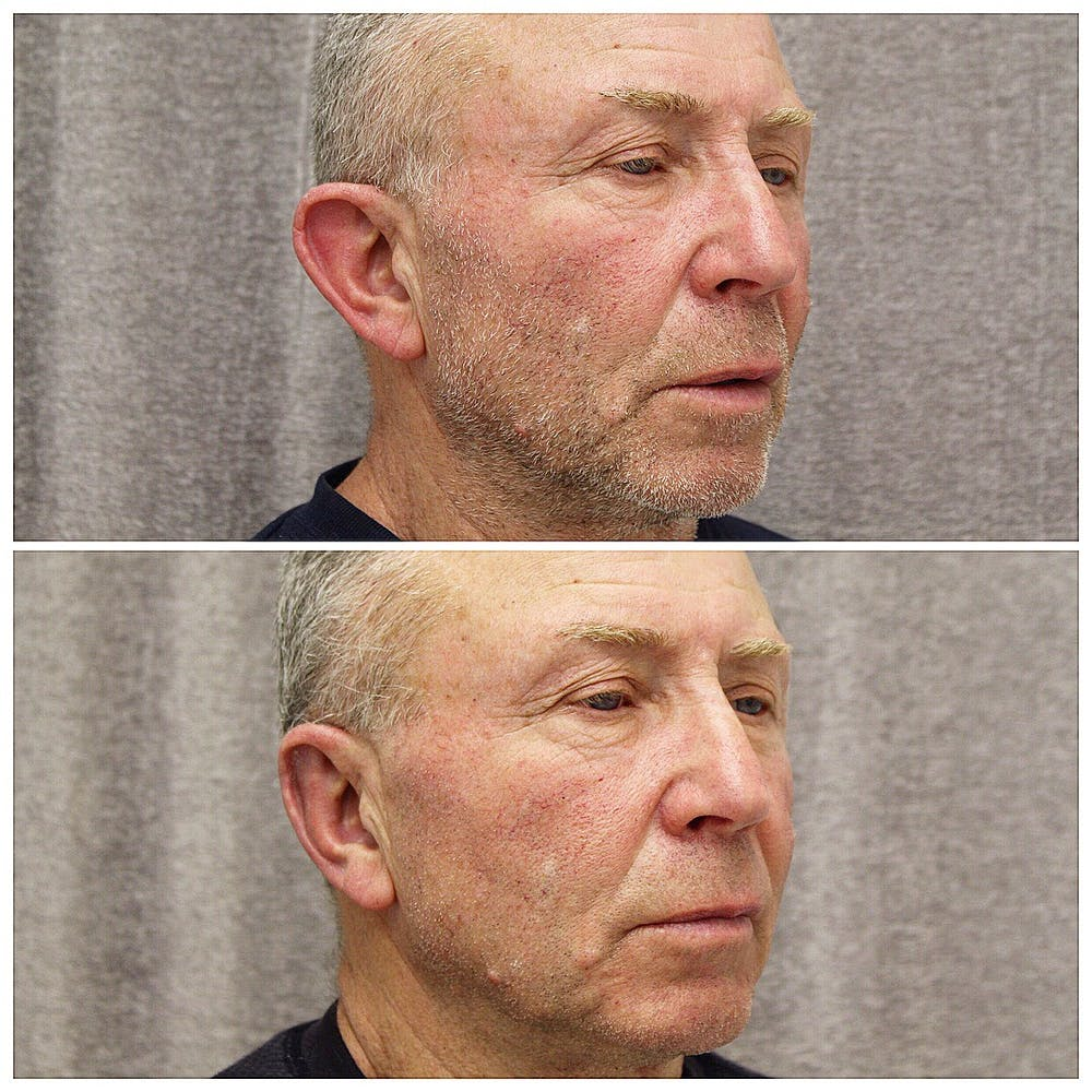 Otoplasty Gallery - Patient 5070701 - Image 2