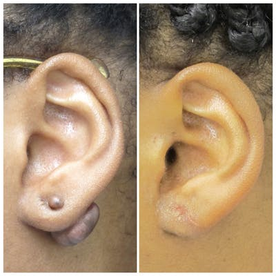 Keloid Removal Gallery - Patient 5095422 - Image 1