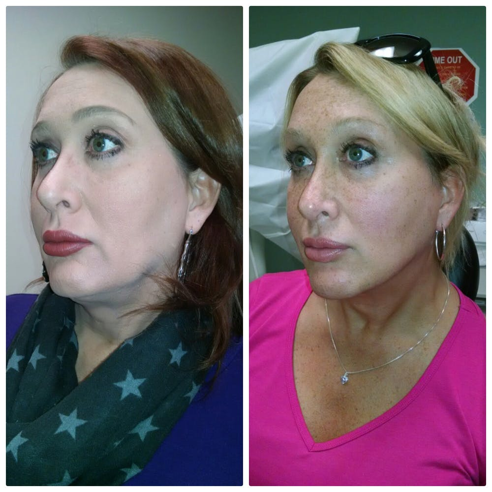 Face & Neck Lift Gallery - Patient 5070741 - Image 1
