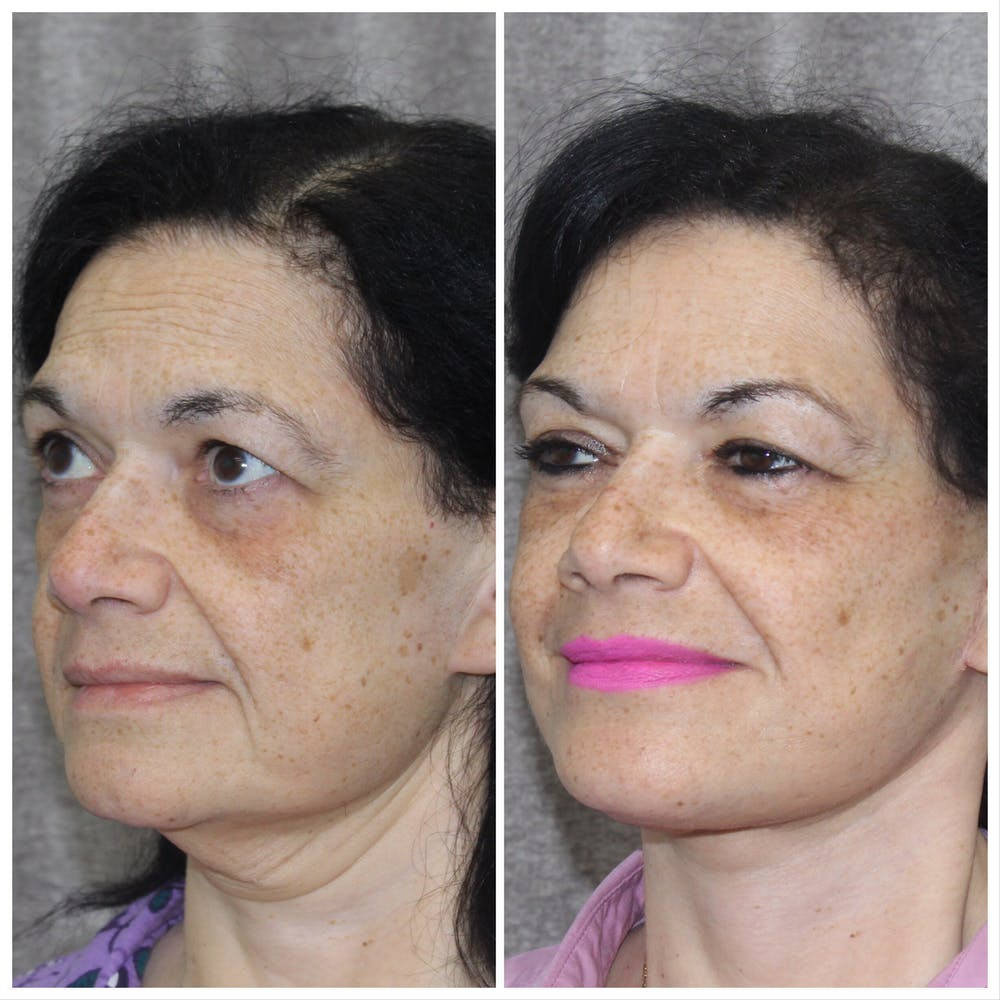 Before and After of Neck Lift in Long Island with Dr. Doshi