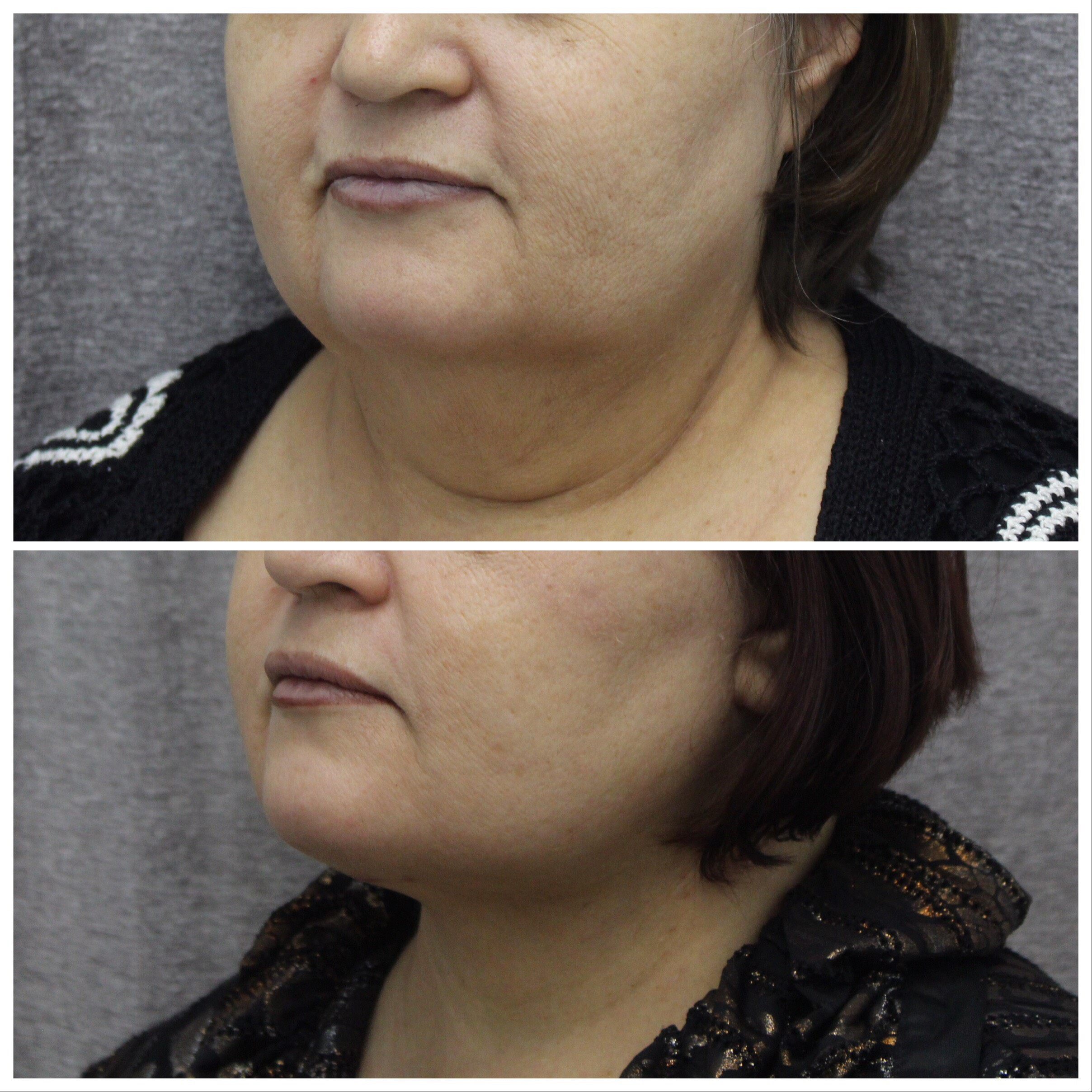 Before and After of Neck lift in Brooklyn with Dr. Doshi