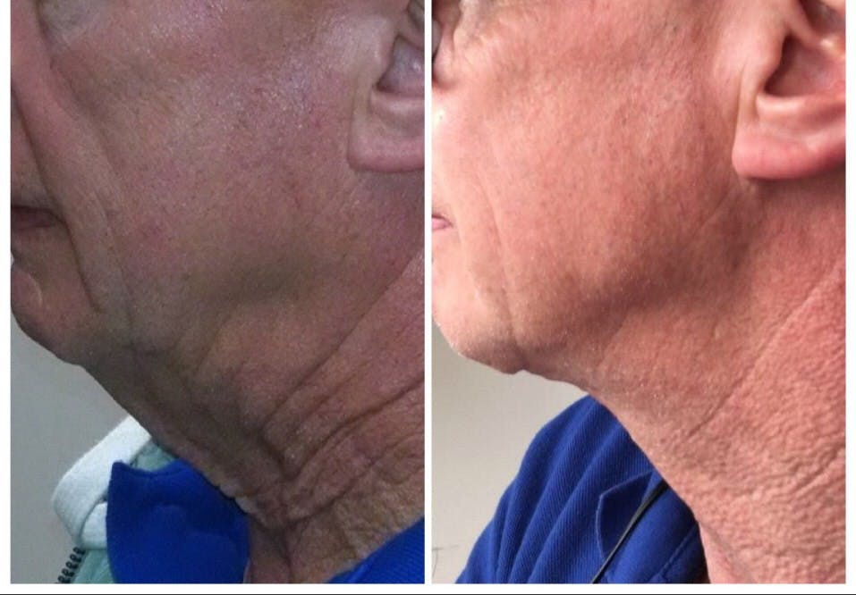 Before and After of Best Neck Lift in Brooklyn with Dr. Doshi