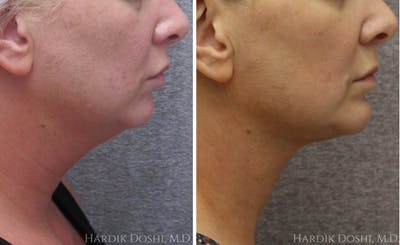 Face & Neck Lift Gallery - Patient 5070745 - Image 1