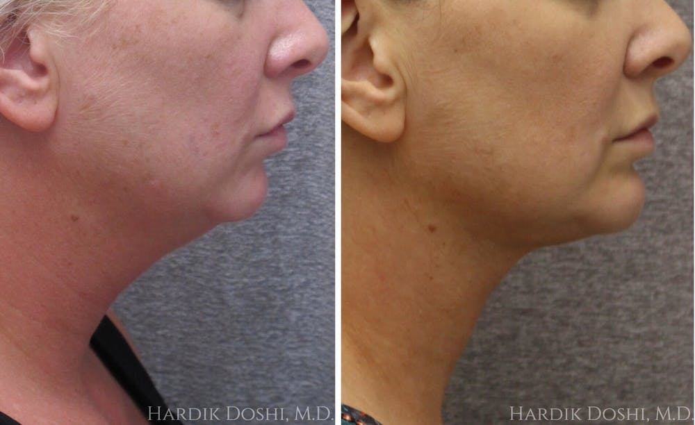 Before and After of Best Neck Lift in Long Island with Dr.Doshi
