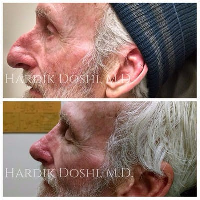 Nose Gallery - Patient 5070767 - Image 1