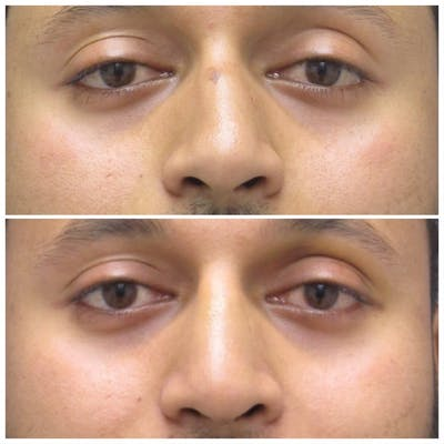 Nose Gallery - Patient 5070768 - Image 1