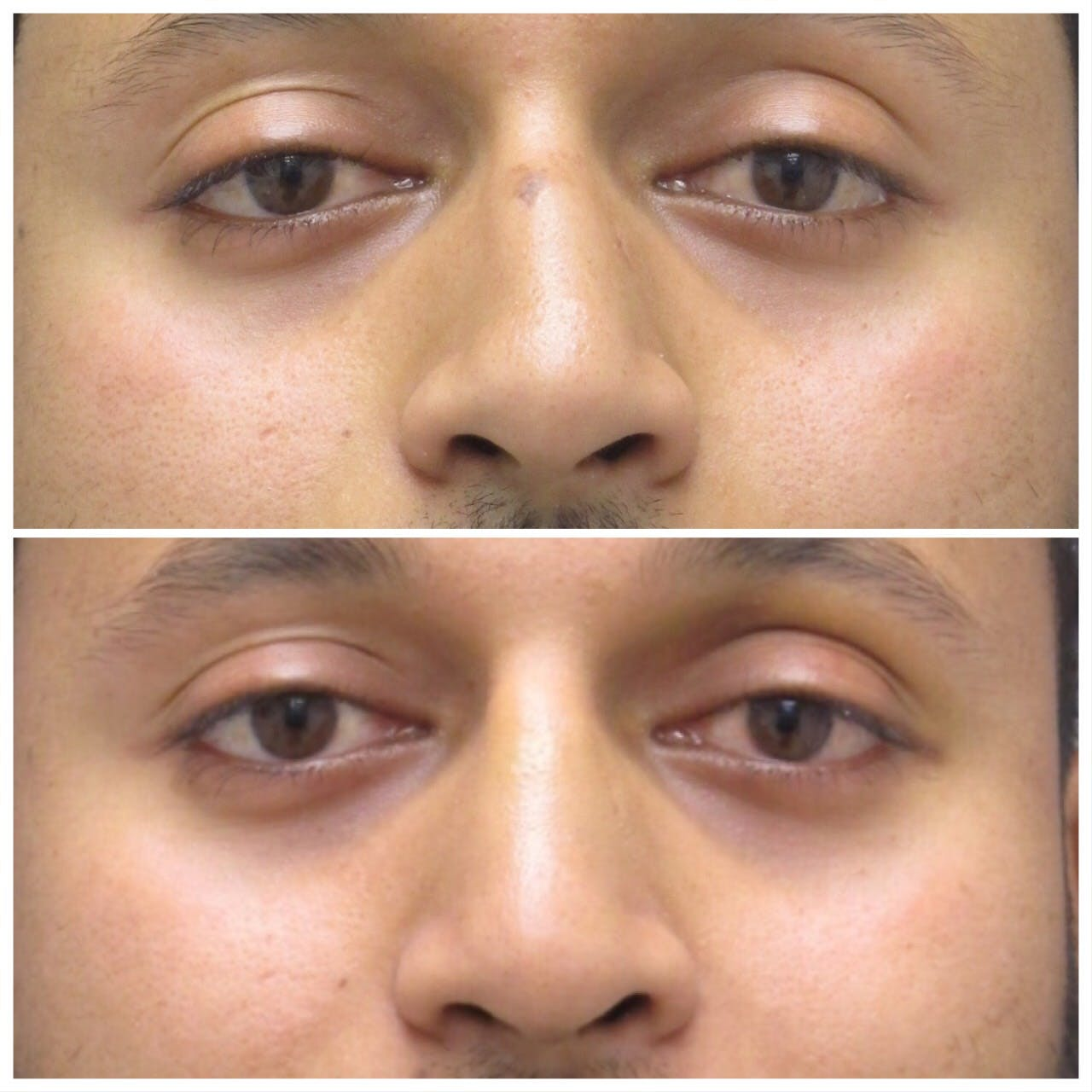 Before and After of Rhinoplasty in Long Island