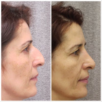 Nose Gallery - Patient 5070769 - Image 2