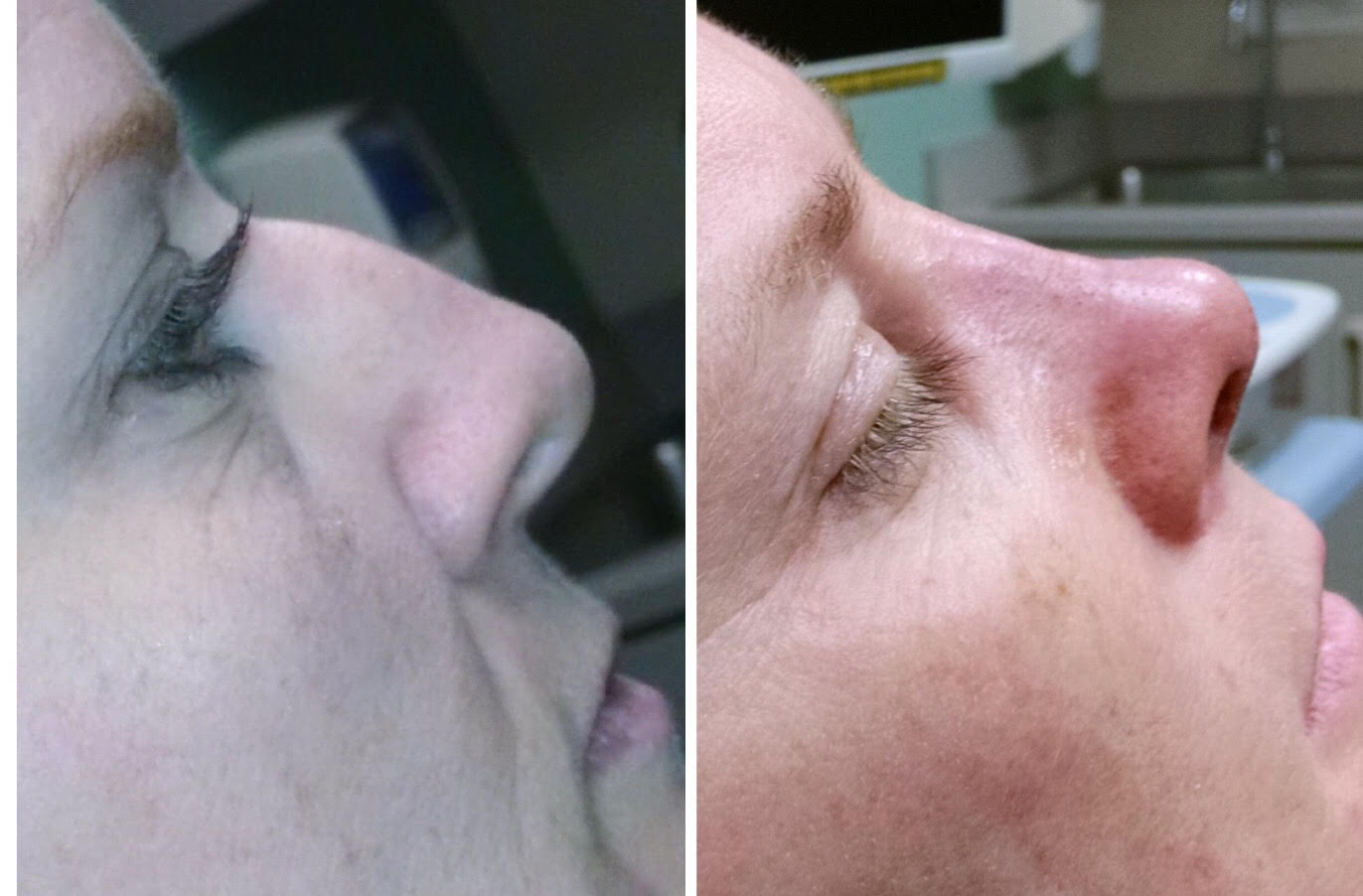 Before and After of Nose Job in Long Island with Dr. Doshi