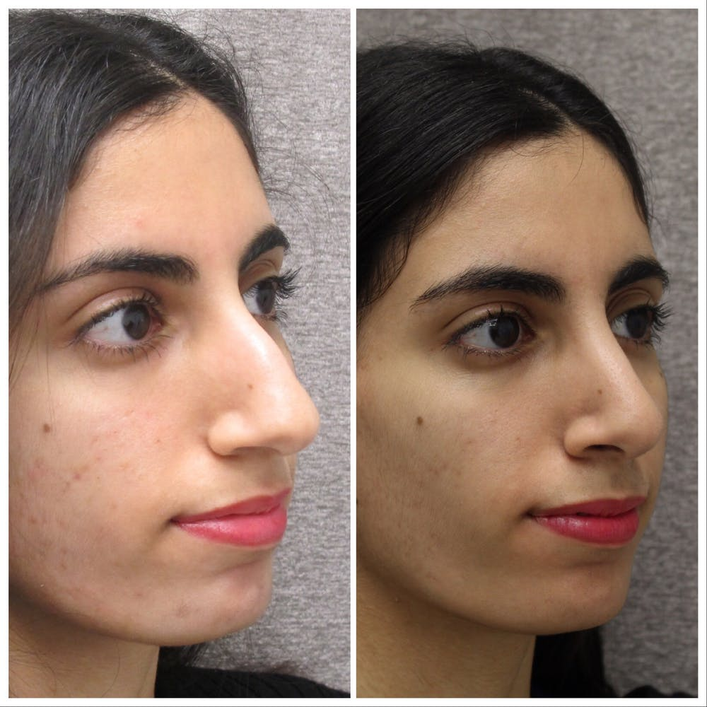 Nose Gallery - Patient 5070771 - Image 1
