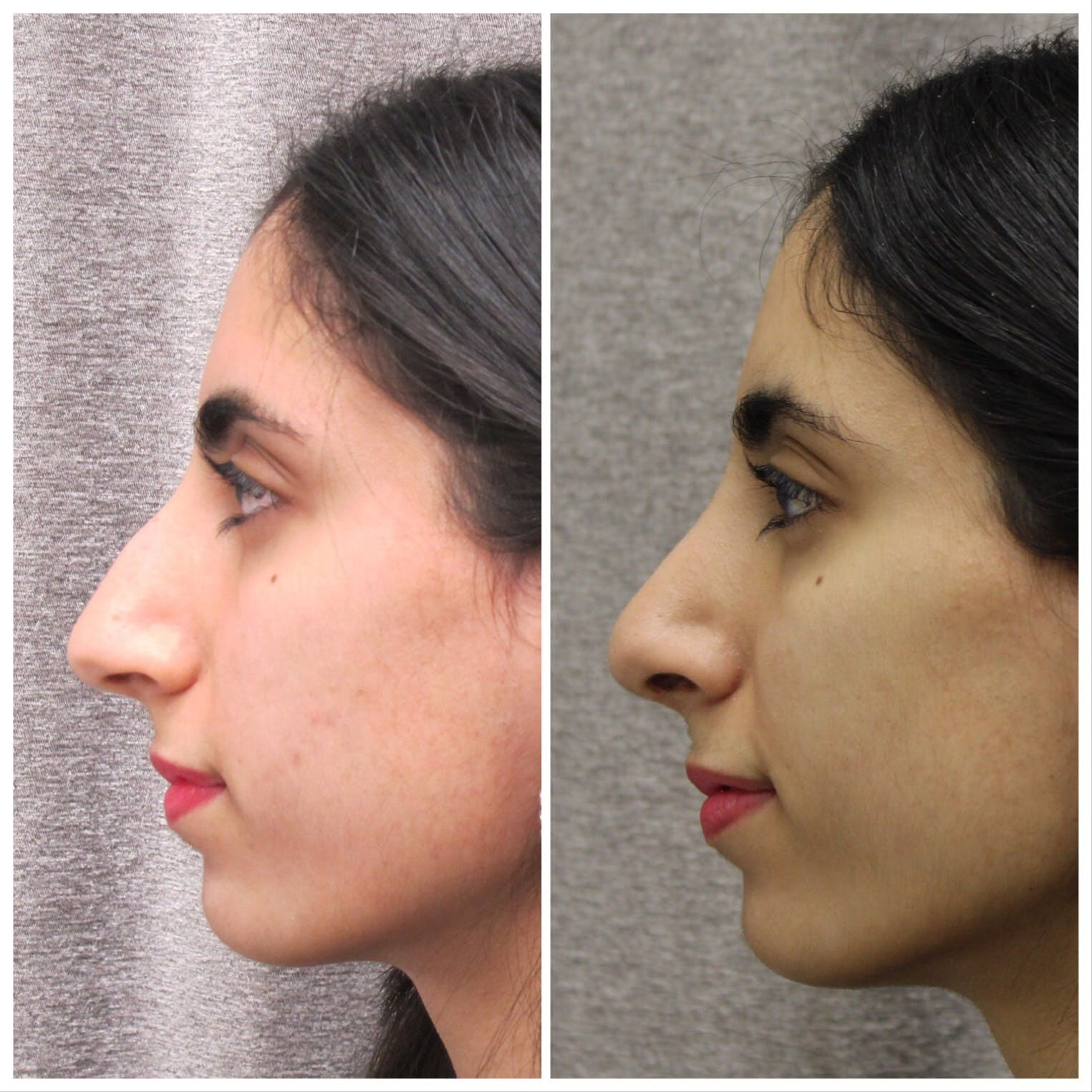 Nose Gallery - Patient 5070771 - Image 2