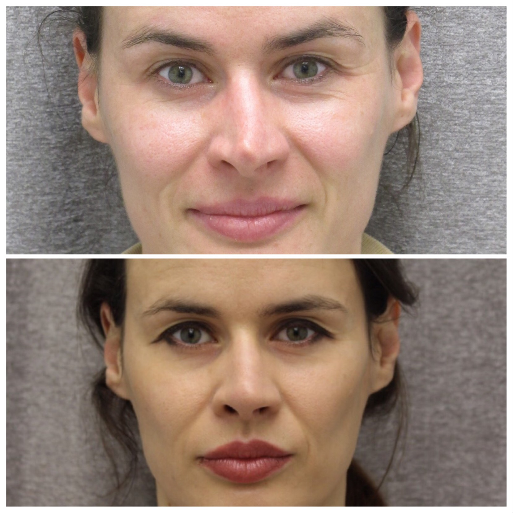 Before and After of Rhinoplasty in Brooklyn with Dr. Doshi