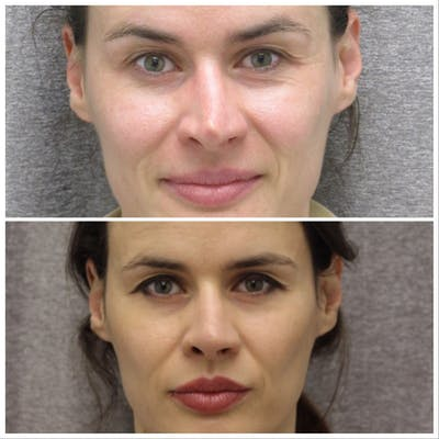 Nose Gallery - Patient 5070808 - Image 1