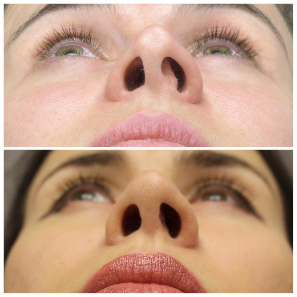 Nose Gallery - Patient 5070808 - Image 2