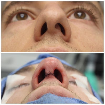Nose Gallery - Patient 5070810 - Image 1