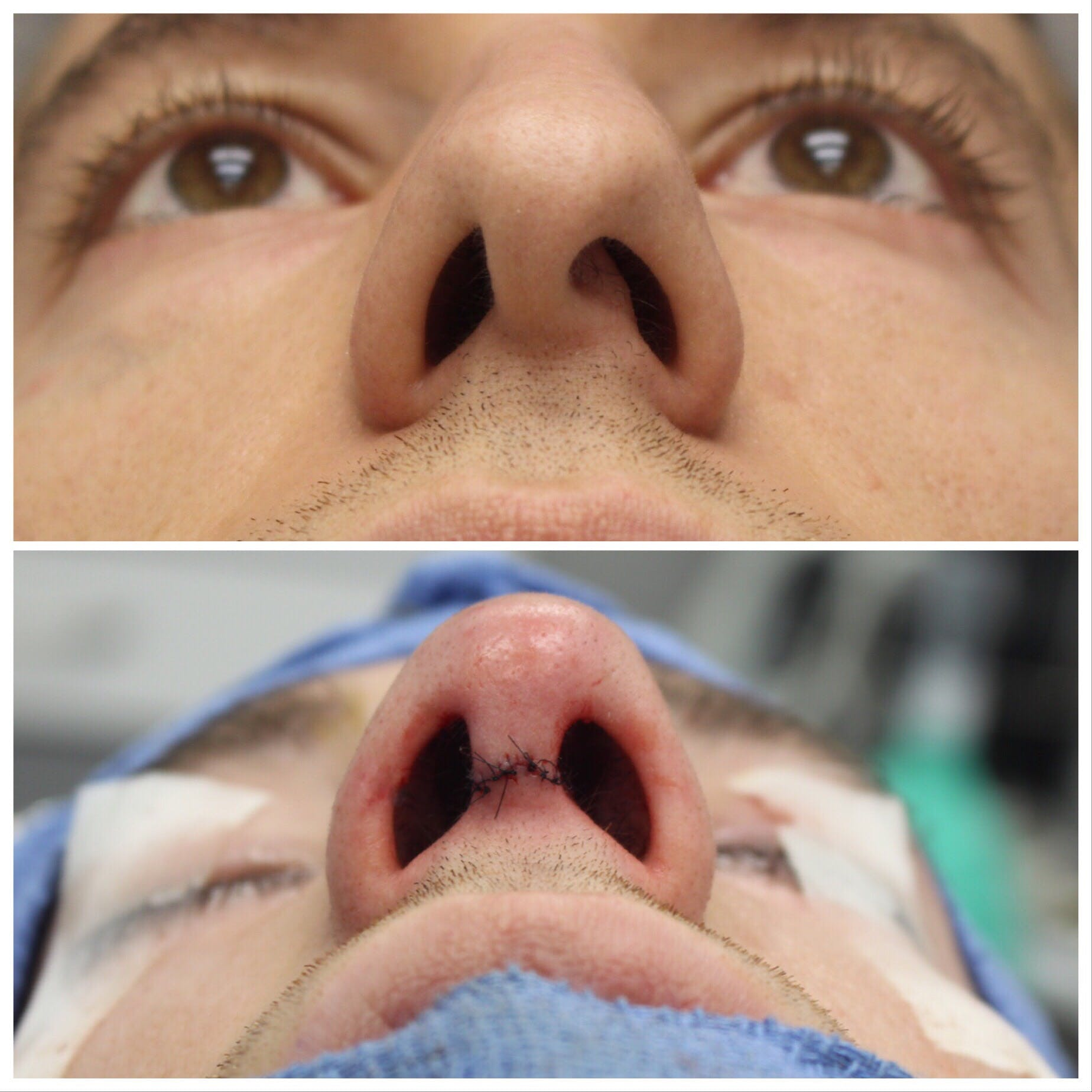 Before and After of Nose Job in Brooklyn with Dr. Doshi