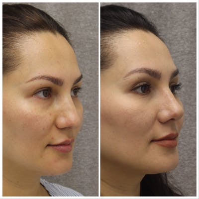 Nose Gallery - Patient 5070812 - Image 1