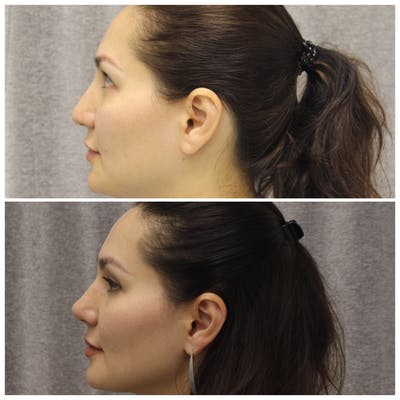 Nose Gallery - Patient 5070812 - Image 3