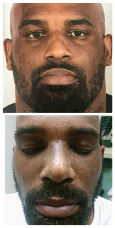Nose Gallery - Patient 5094102 - Image 1