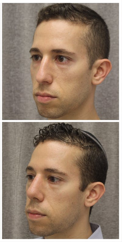 Nose Gallery - Patient 5094103 - Image 1