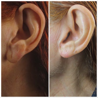 Ear Lobe Reduction Gallery - Patient 5070705 - Image 1