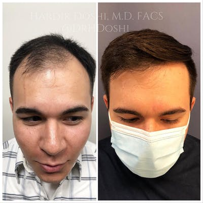 Hair Restoration Gallery - Patient 25623144 - Image 1