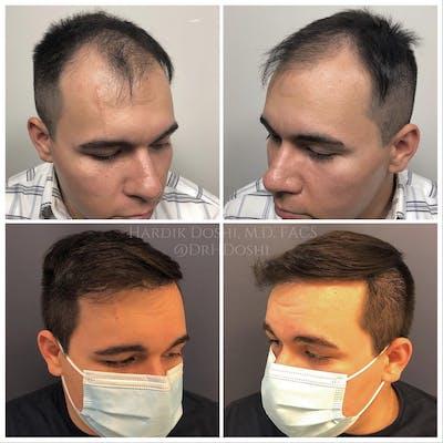 Hair Restoration Gallery - Patient 25623144 - Image 2