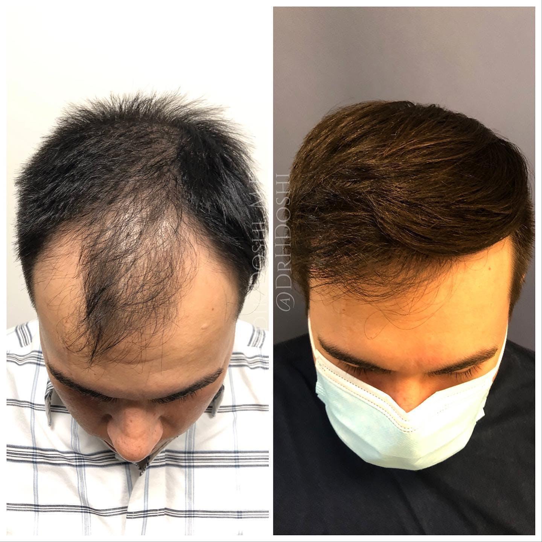 Hair Restoration Gallery - Patient 25623144 - Image 3