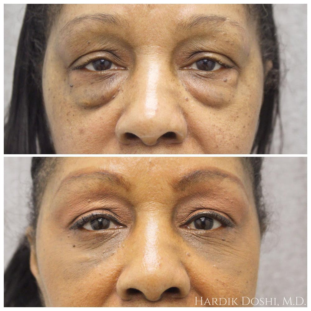 Eyes Gallery - Patient 5070719 - Image 1
