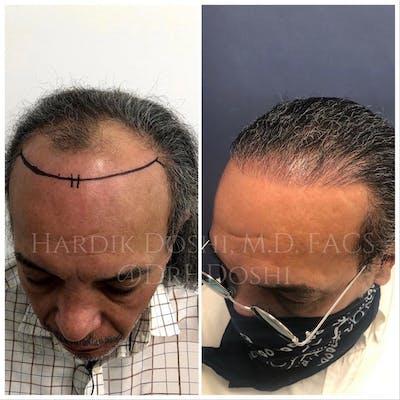 Hair Restoration Gallery - Patient 37533684 - Image 2