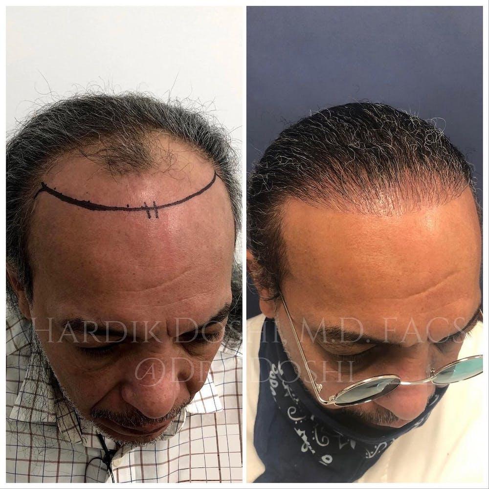 Hair Restoration Gallery - Patient 37533684 - Image 3