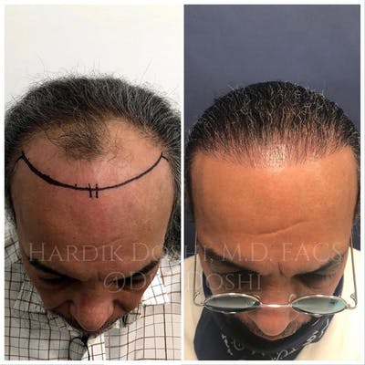 Hair Restoration Gallery - Patient 37533684 - Image 1