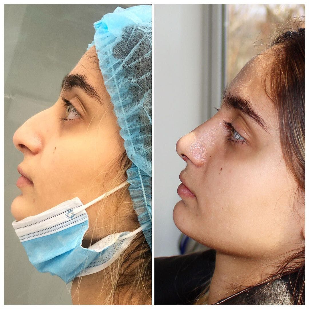 Nose Gallery - Patient 42975670 - Image 1
