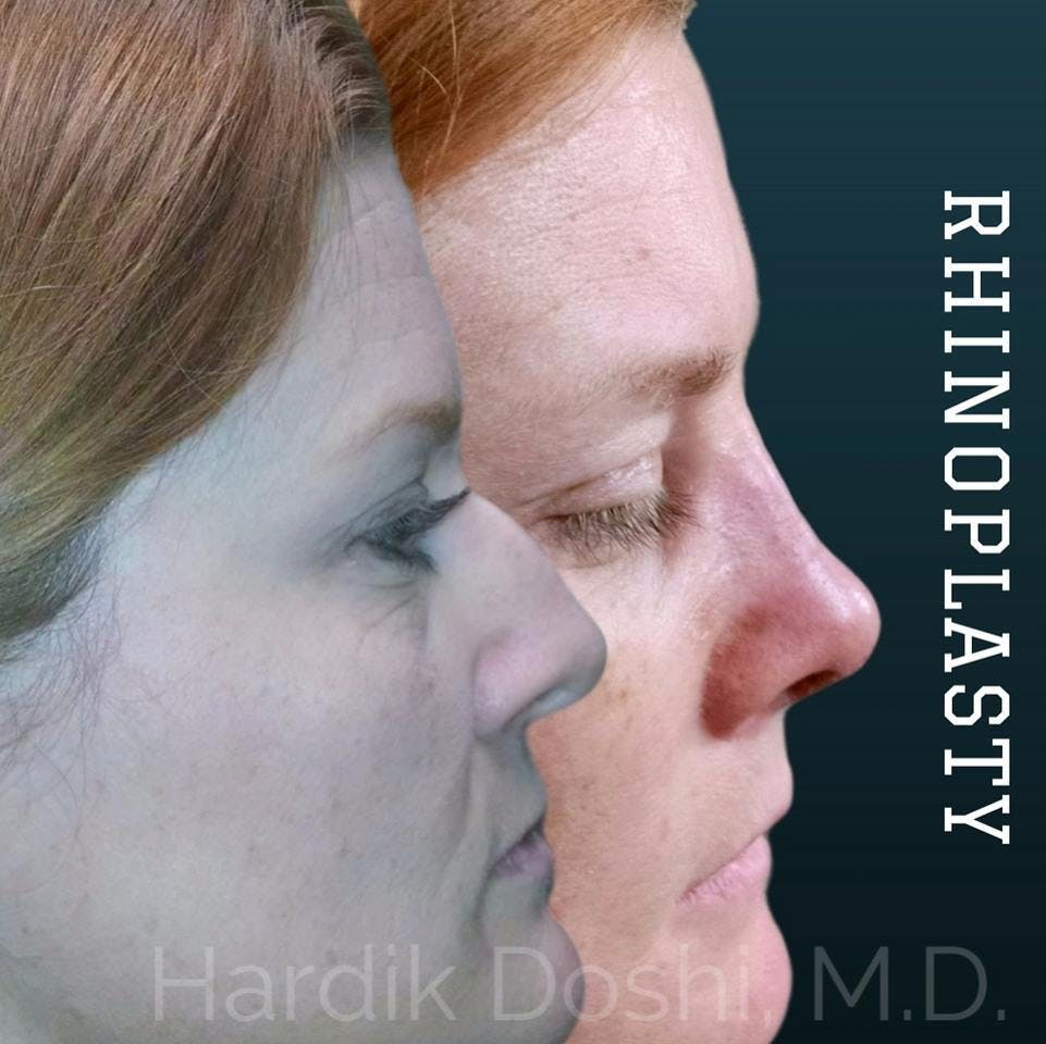 Nose Gallery - Patient 60842956 - Image 1