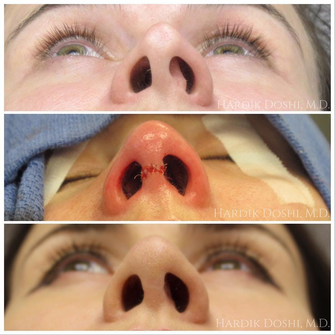 Nose Gallery - Patient 60842964 - Image 1