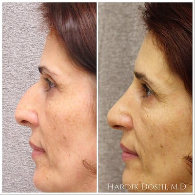 Nose Gallery - Patient 5070769 - Image 1