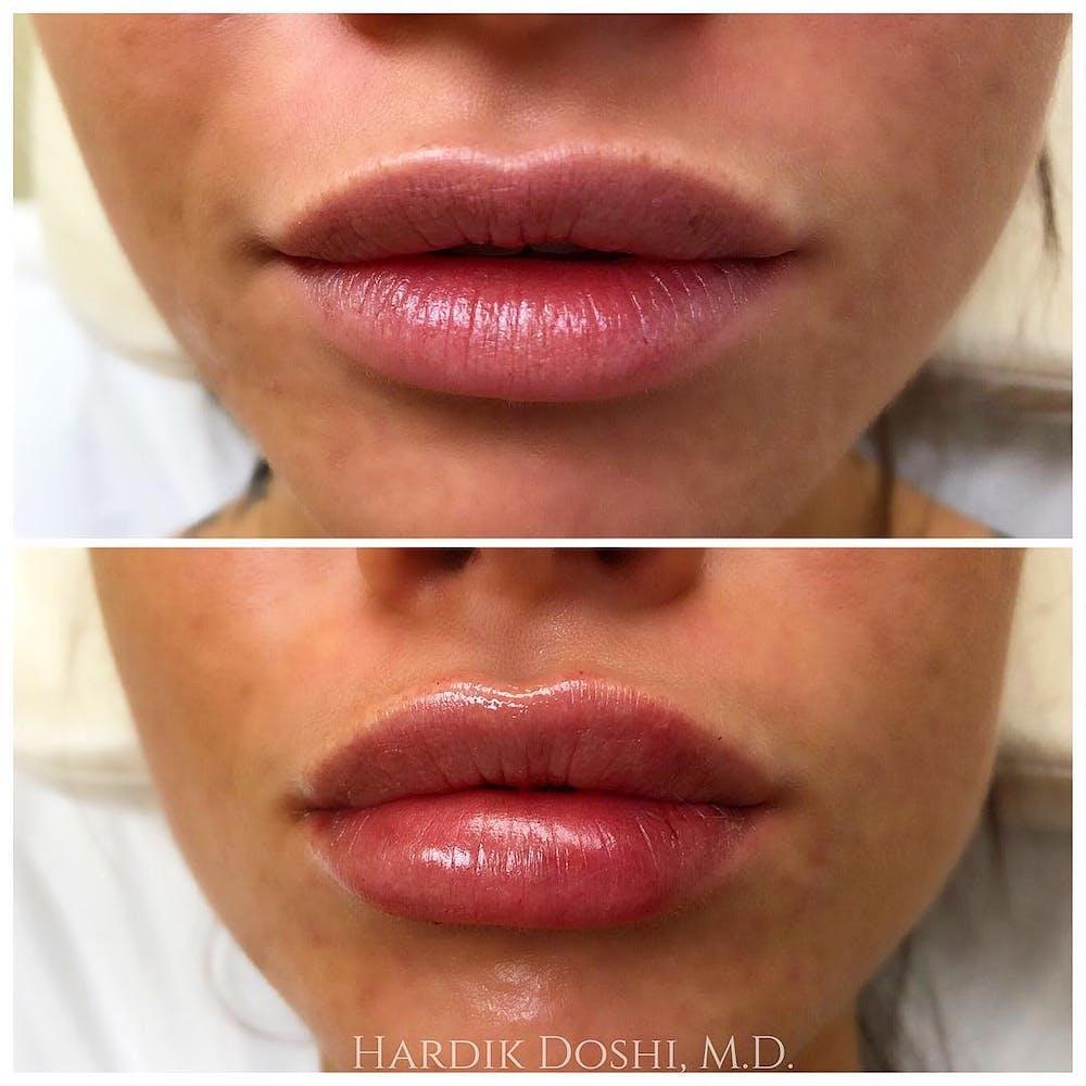 Lip Filler Gallery - Patient 5070647 - Image 1