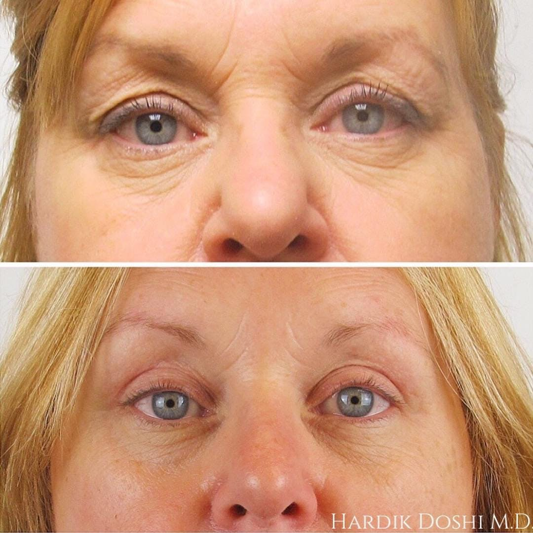 Eyes Gallery - Patient 60843002 - Image 1