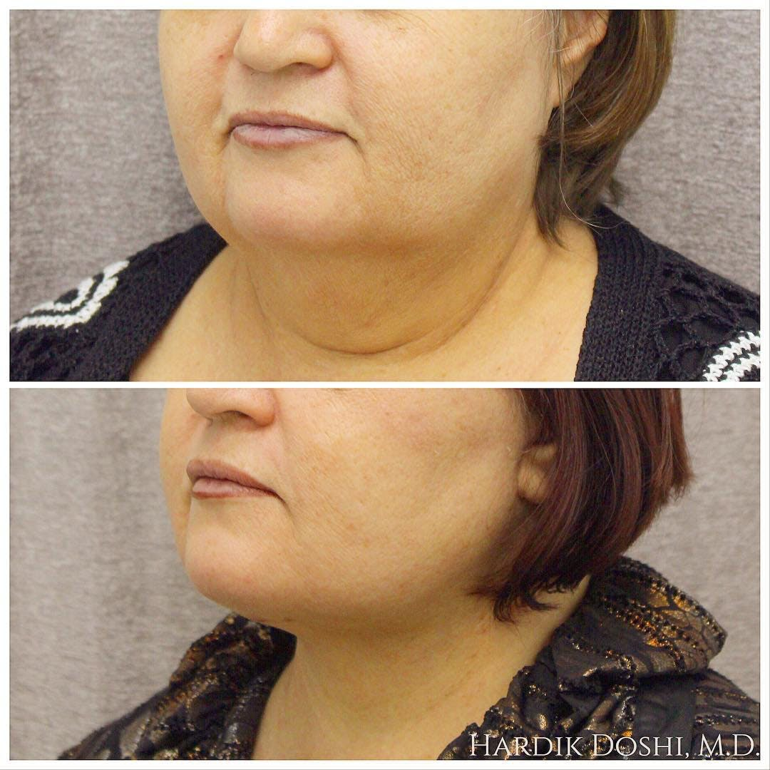 Face & Neck Lift Gallery - Patient 5070743 - Image 1
