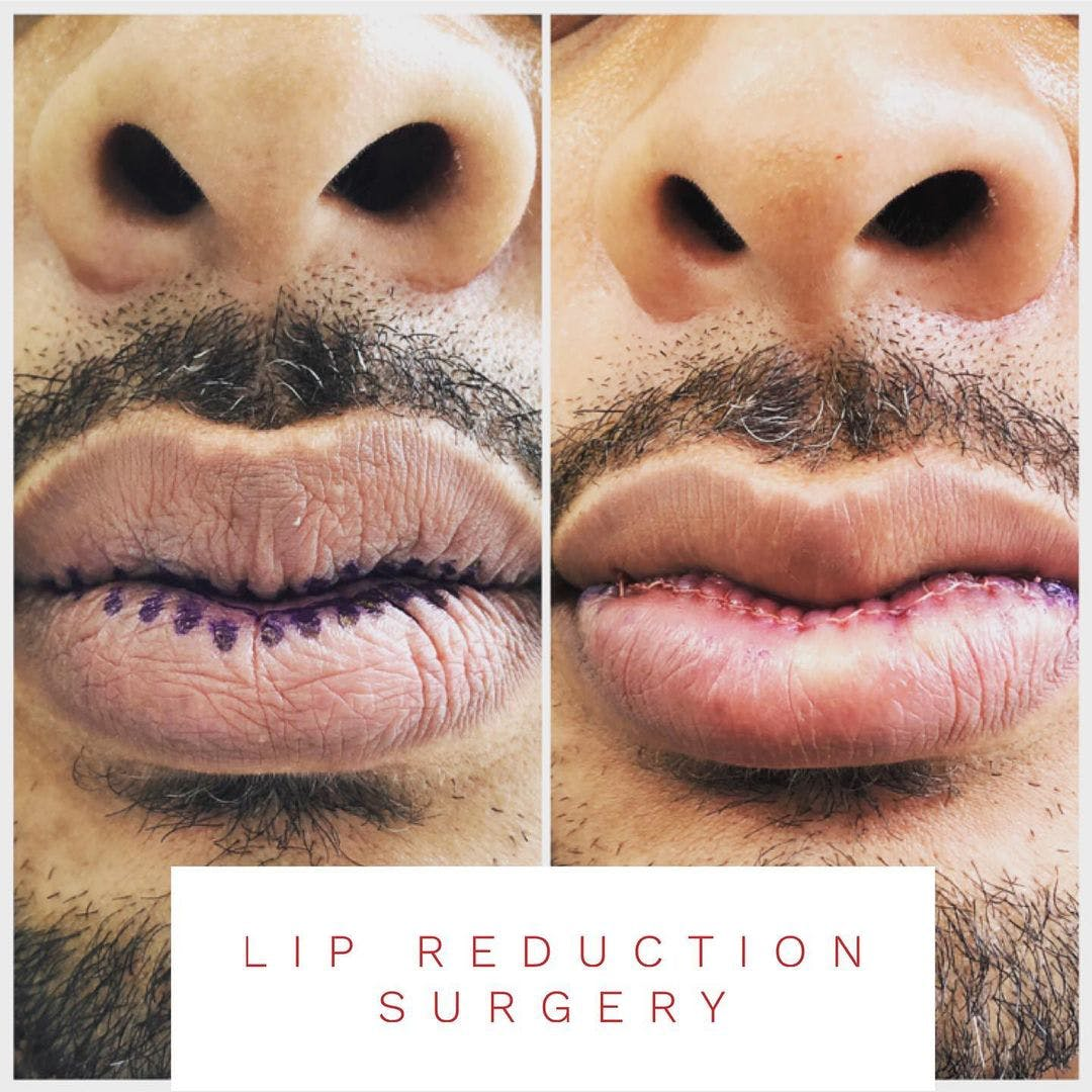 Lip Reduction Gallery - Patient 60859534 - Image 1