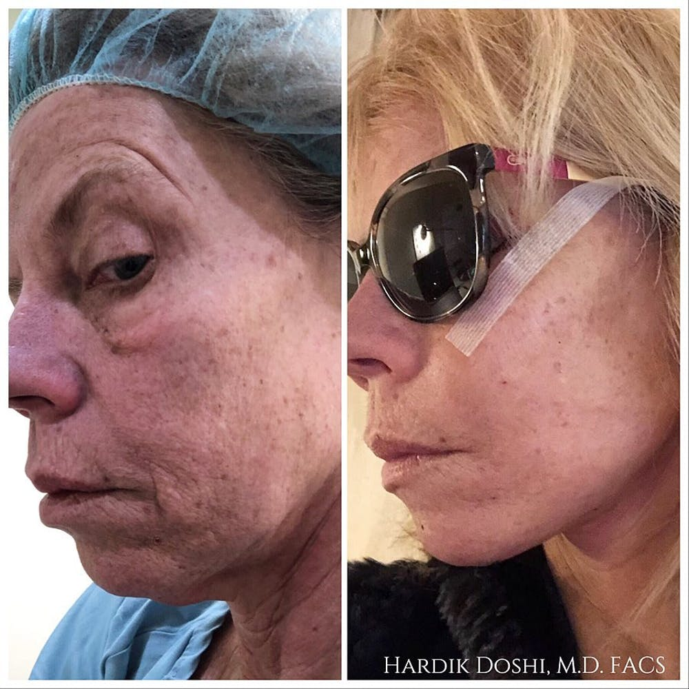 Face & Neck Lift Gallery - Patient 60859543 - Image 1