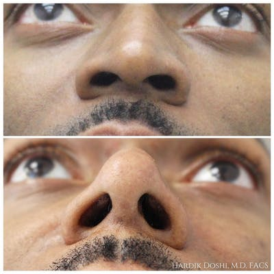 Nose Gallery - Patient 60859552 - Image 1