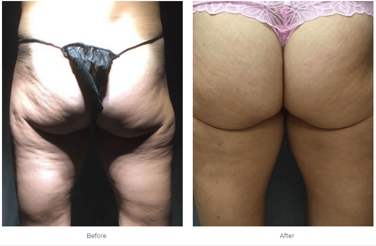 Once Cellulite Has Been Removed, Can It Return Newport Beach