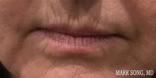 Before and After image of Lip Augmentation