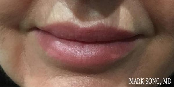 Lips Gallery - Patient 5070427 - Image 2