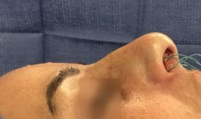 Functional Rhinoplasty Gallery - Patient 5070439 - Image 1