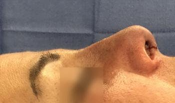Functional Rhinoplasty Gallery - Patient 5070439 - Image 2