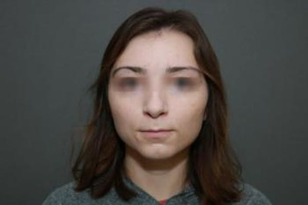 Functional Rhinoplasty Gallery - Patient 5070449 - Image 1
