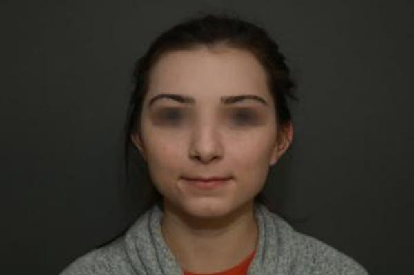 Functional Rhinoplasty Gallery - Patient 5070449 - Image 2